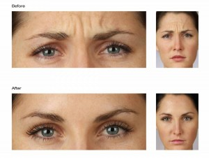 Botox toronto treatment