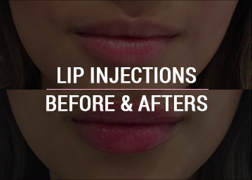 Lip Injections Before & After Photos
