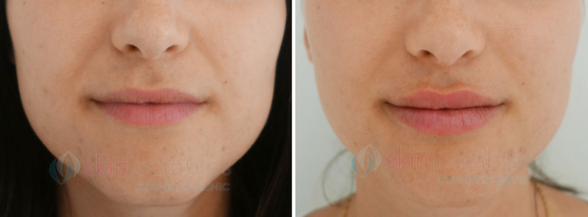 LIp Injections Before & After Photos (Lip Augmentation) - Skinjectables Cosmetic Clinic